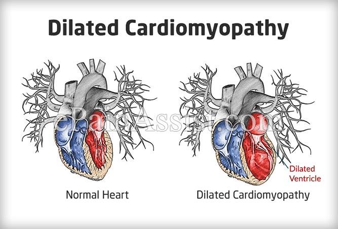 dilated cardiomyopathy causes symptoms treatment prevention prognosis