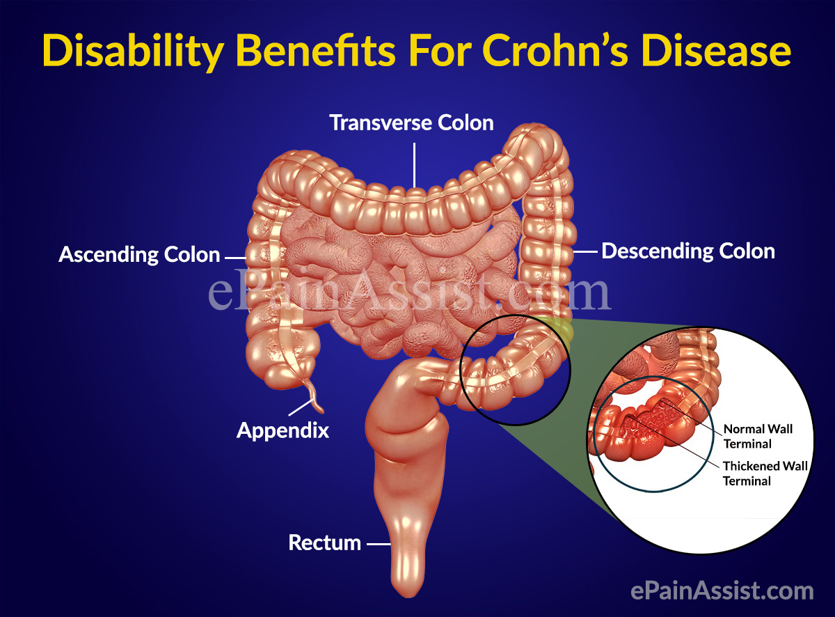 disability benefits for crohn s disease. Black Bedroom Furniture Sets. Home Design Ideas