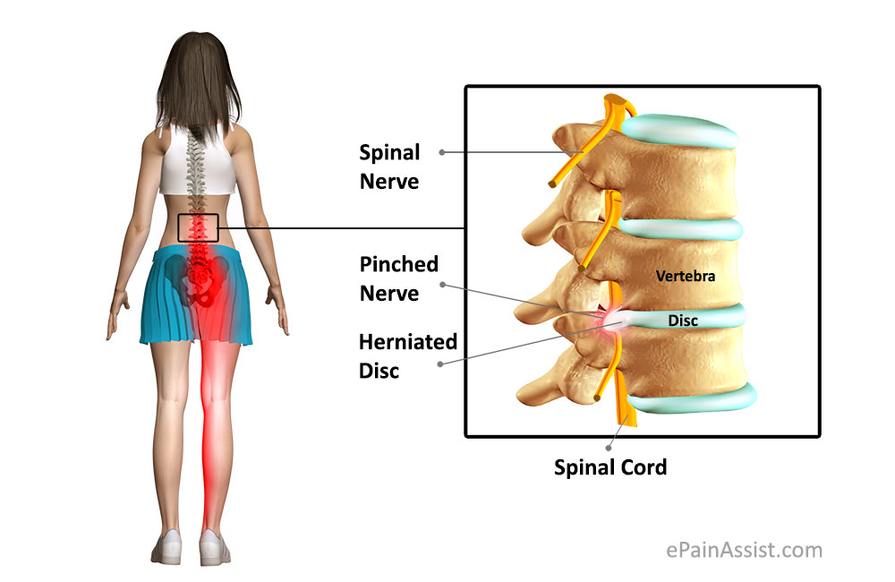 Bulging Disc Lower Back Pain