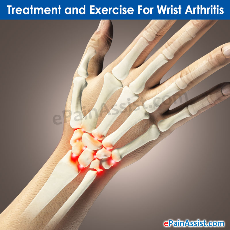 Treatment and Exercise For Wrist Arthritis