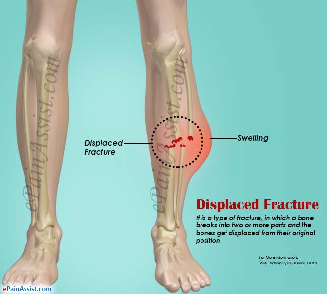 Displaced Fracturetypescausessymptomstreatmentrecovery Period