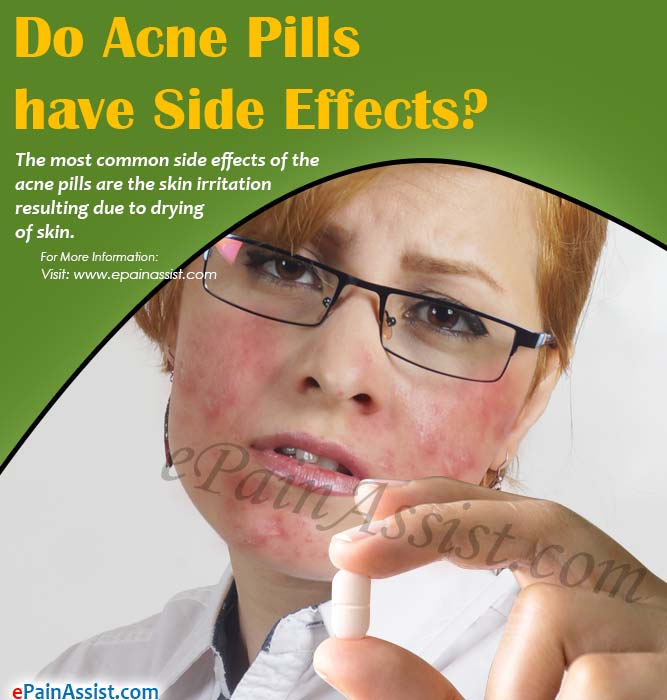 Do Acne Pills have Side Effects?