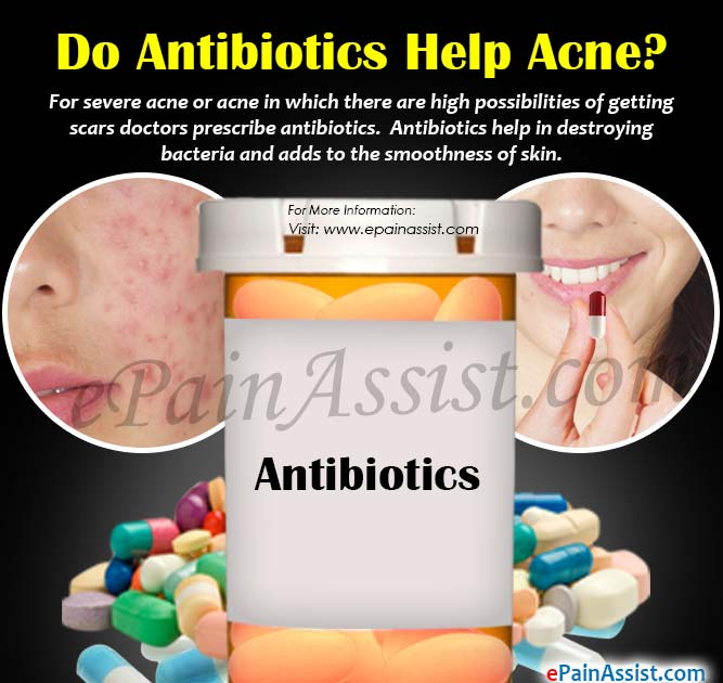 Do Antibiotics Help Acne?