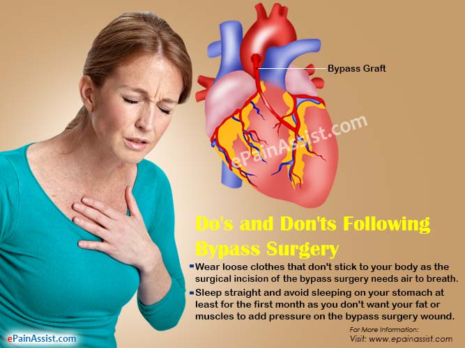 Do's and Don'ts Following Bypass Surgery