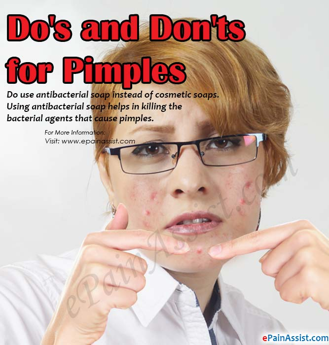Do's and Don'ts for Pimples