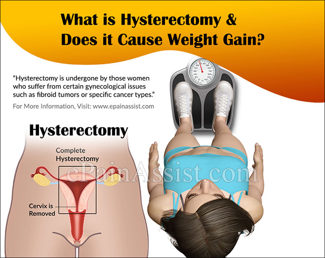 What is Hysterectomy & Does it Cause Weight Gain?