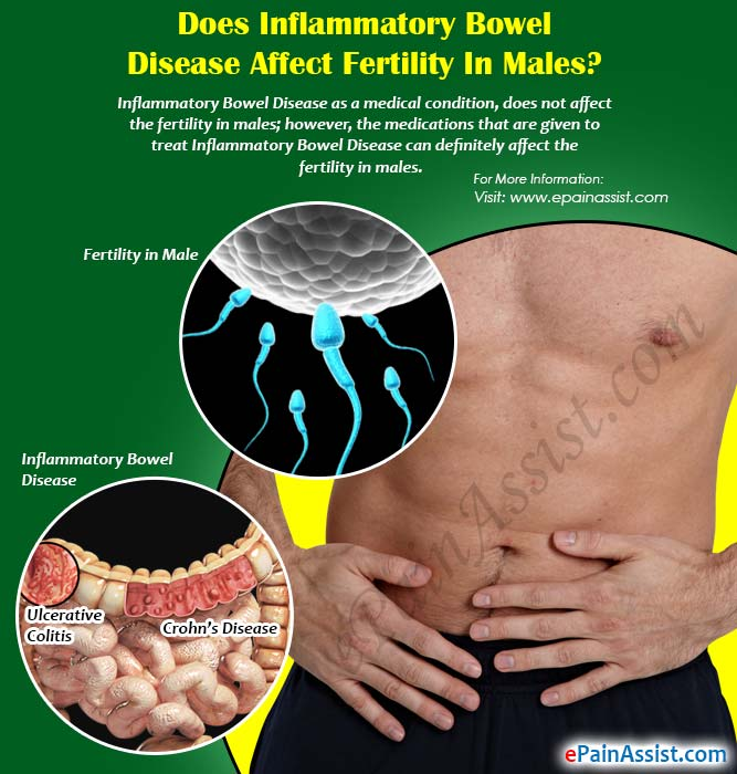 Does Inflammatory Bowel Disease Affect Fertility in Males?