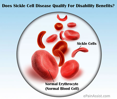 Does Sickle Cell Disease Qualify For Disability Benefits?