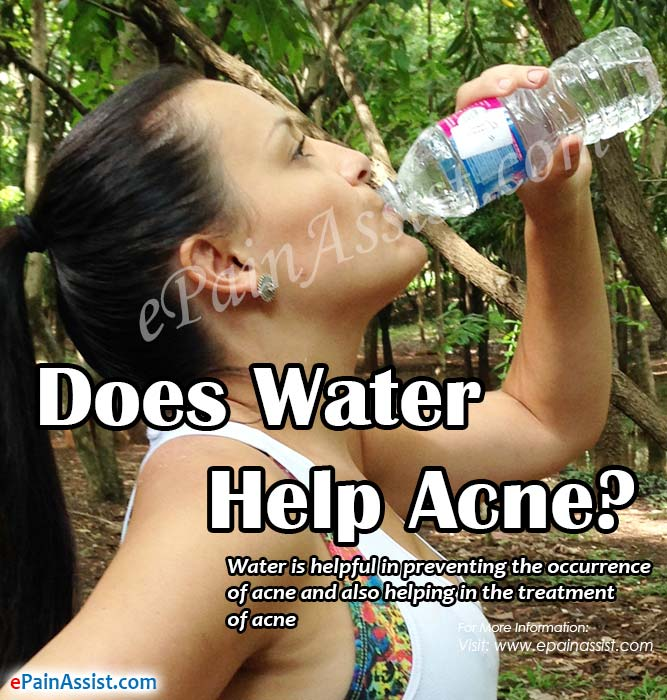 Does Water Help Acne?