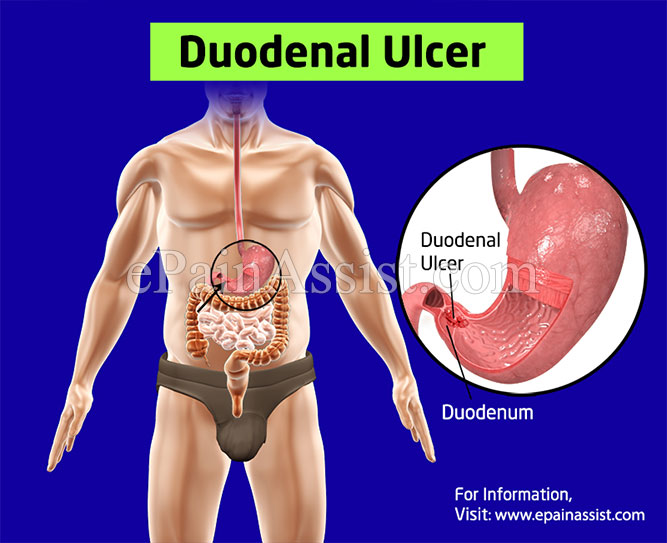 causes duodenal ulcer?, Human Body