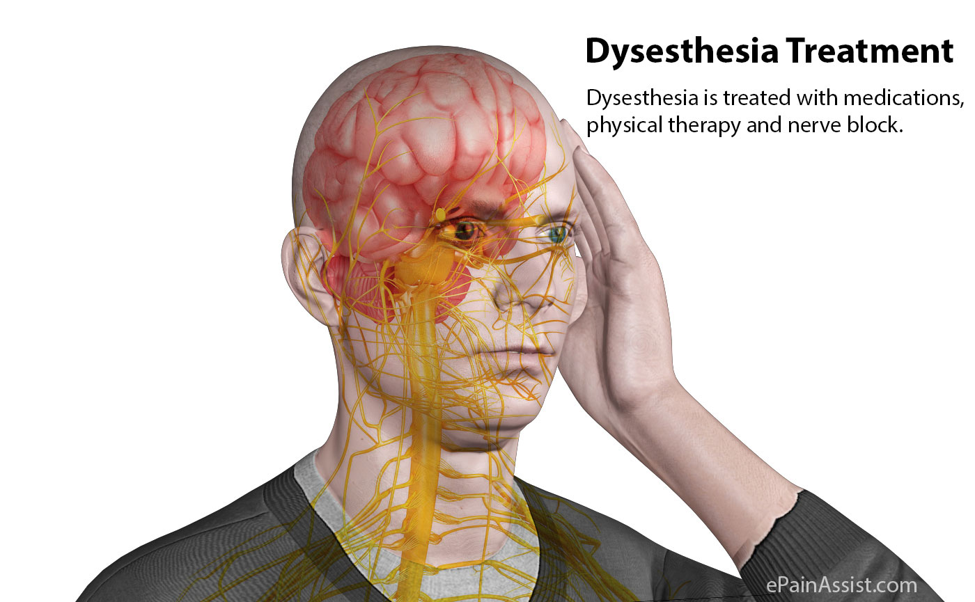 Dysesthesia Treatment