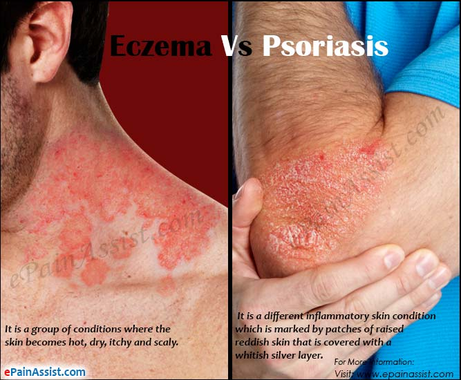 eczema vs psoriasis: differences worth knowing, Skeleton