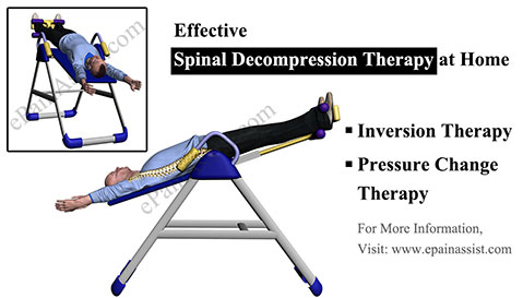 Effective Spinal Decompression Therapy at Home