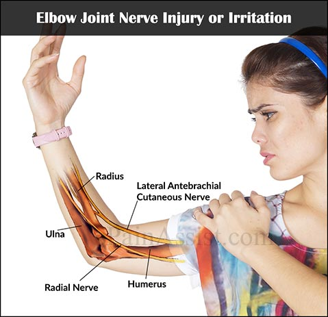 Elbow Joint Nerve Injury or Irritation