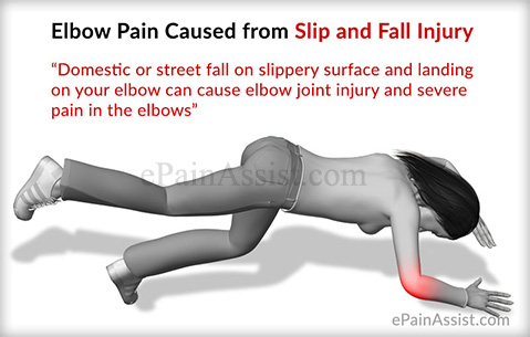 Elbow Pain Caused from Slip and Fall Injury