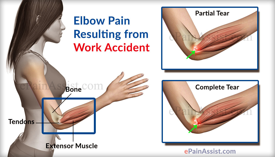 Causes Of Elbow Pain
