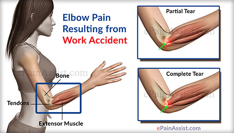Elbow Pain Resulting from Work Accident