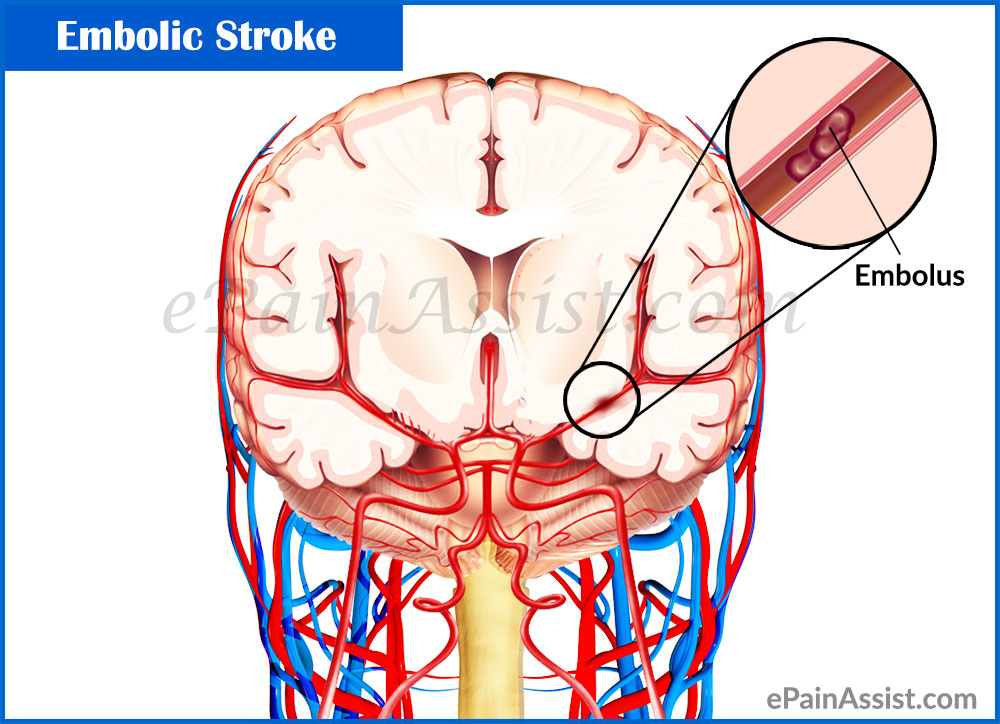 brain stroke causes and symptoms  Embolic Stroke|Causes|Symptoms|Treatment|Recovery