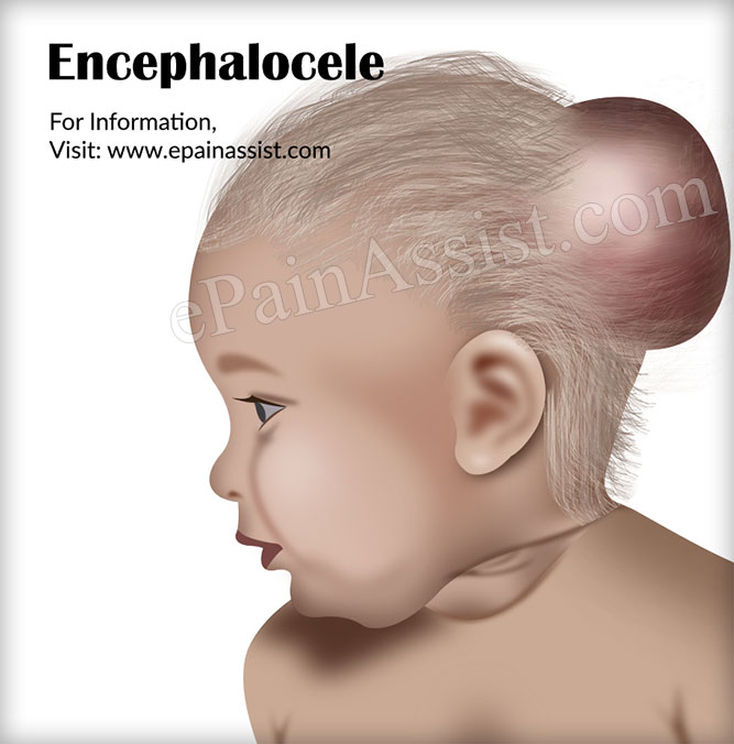 What is Encephalocele Causes Symptoms Treatment Recovery ...  What is Encepha...