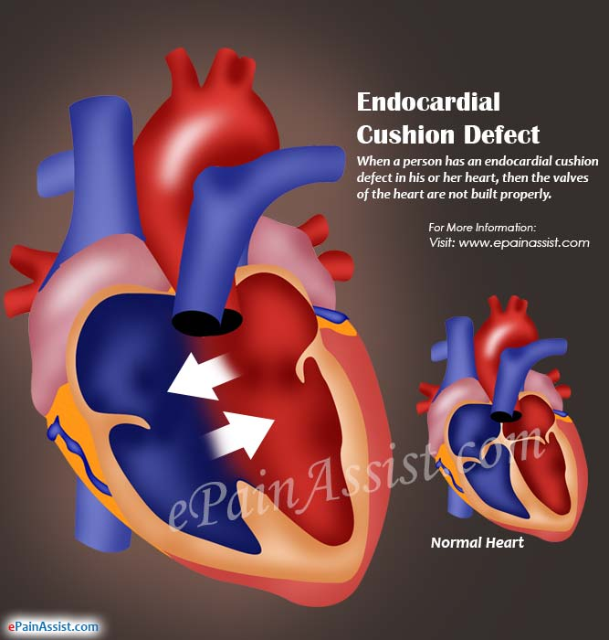 What is Endocardial Cushion Defect?