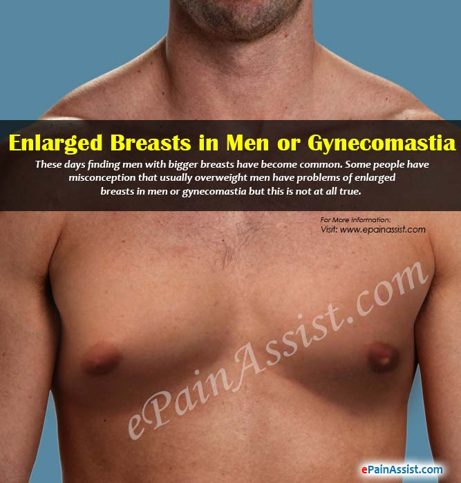 in Develop male breasts a