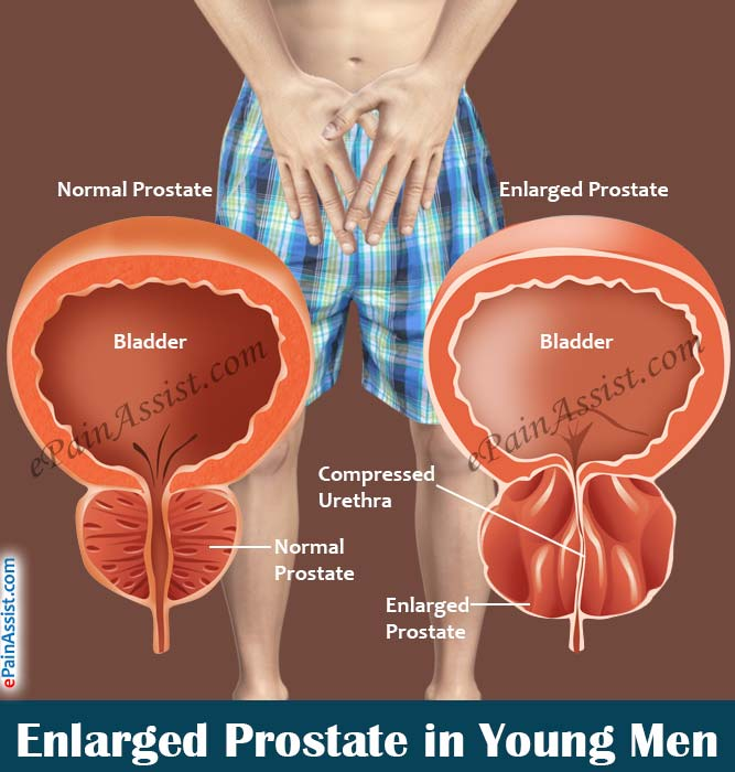 Lack of sex enlarges prostate