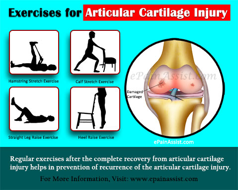 Exercises for Articular Cartilage Injury