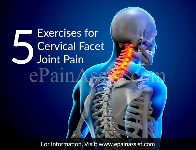 Exercises for Cervical Facet Joint Pain