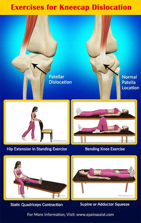 Exercises for Kneecap Dislocation or Patellar Dislocation