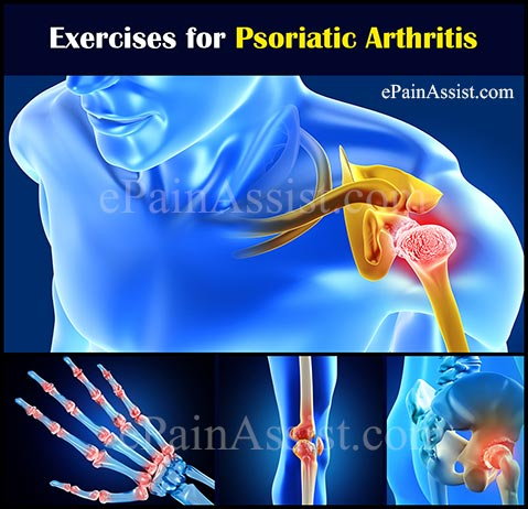 Exercises for Psoriatic Arthritis