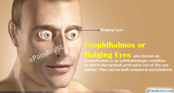 exophthalmos or bulging eyes