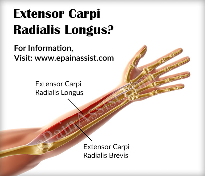 What Can Cause Extensor Carpi Radialis Longus Pain?