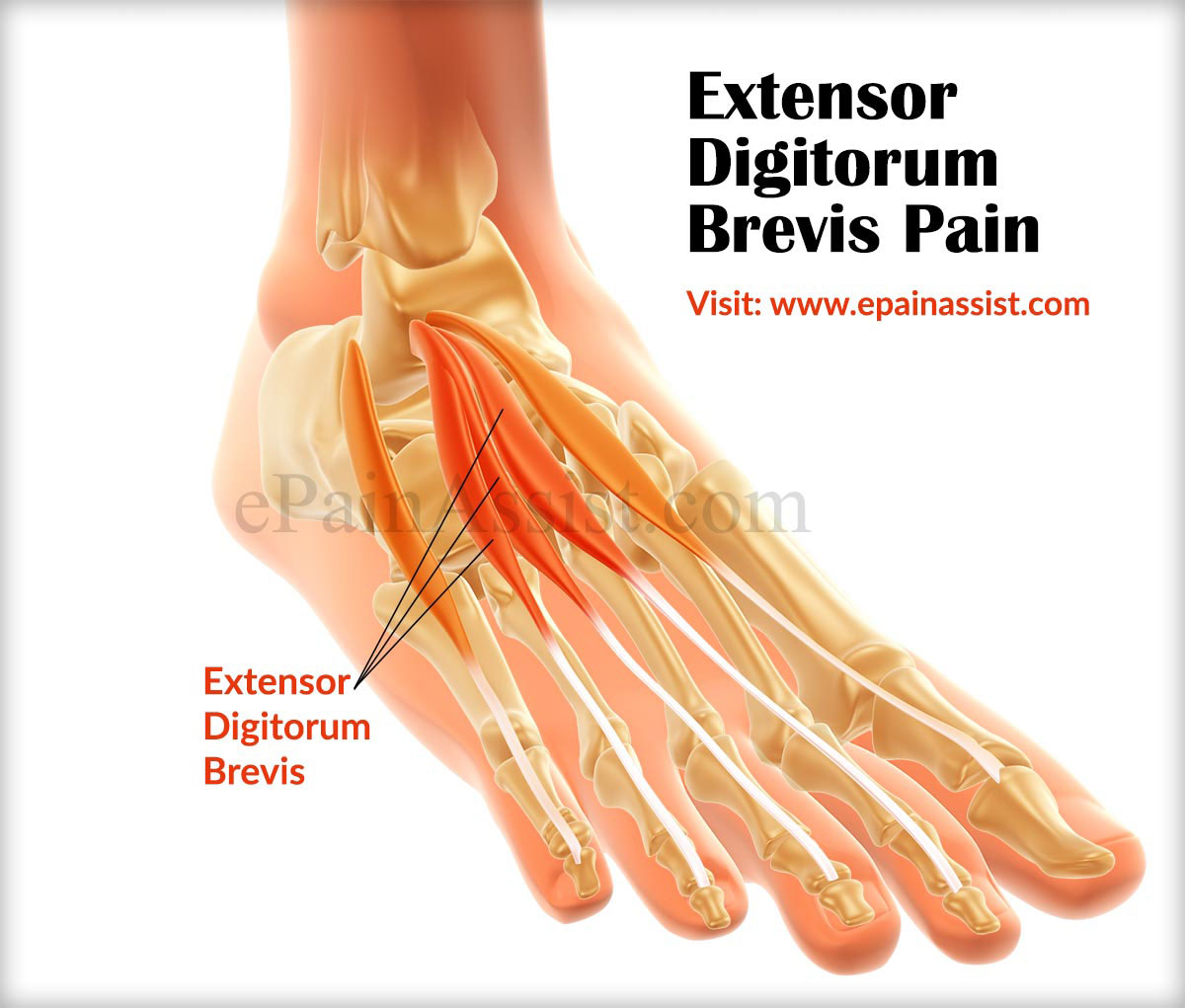 extensor digitorum brevis pain|causes|symptom|treatment, Human Body