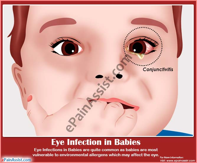 What Are The Causes Of Eye Infection In Babies