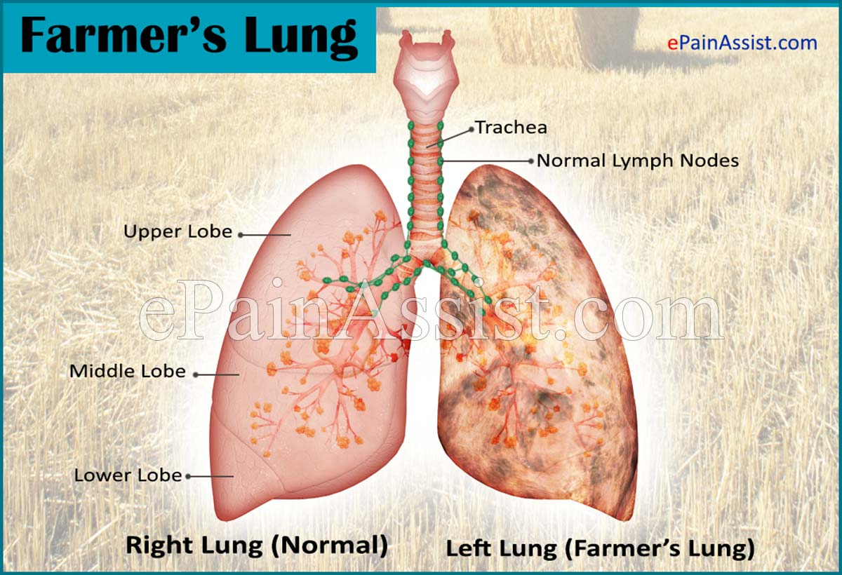 Farmers Lung Treatment Causes Symptoms