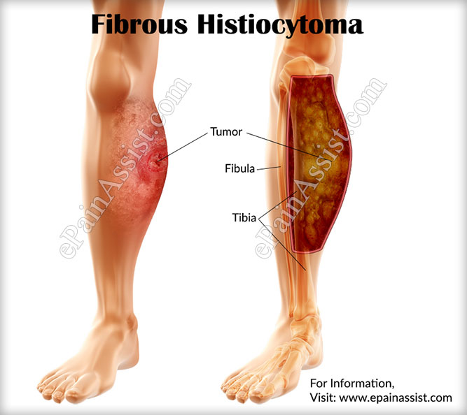 What is Fibrous Histiocytoma?