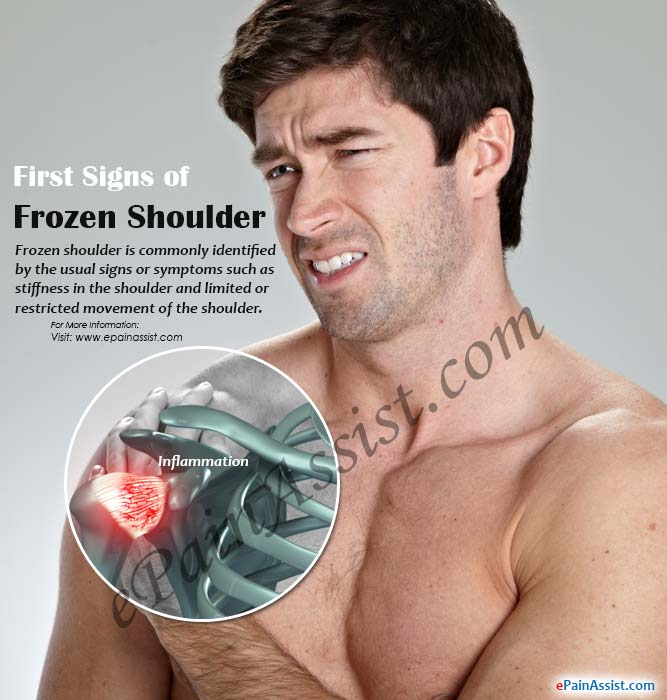 first signs of frozen shoulder its treatment