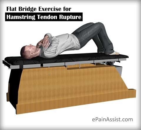 Flat Bridge Exercise for Hamstring Tendon Rupture