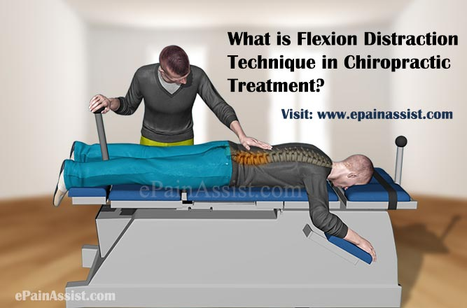 What is Flexion Distraction Technique in Chiropractic Treatment?