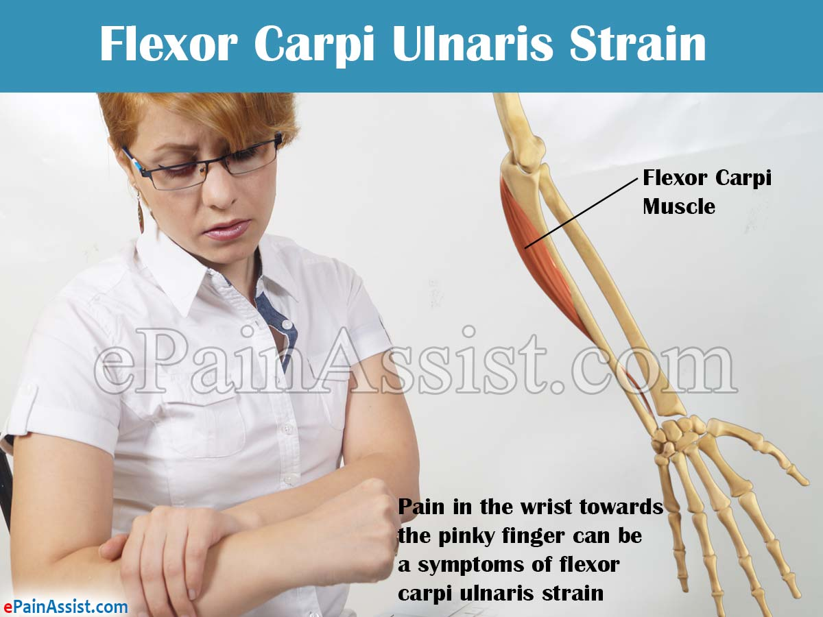 Flexor Carpi Ulnaris Strain