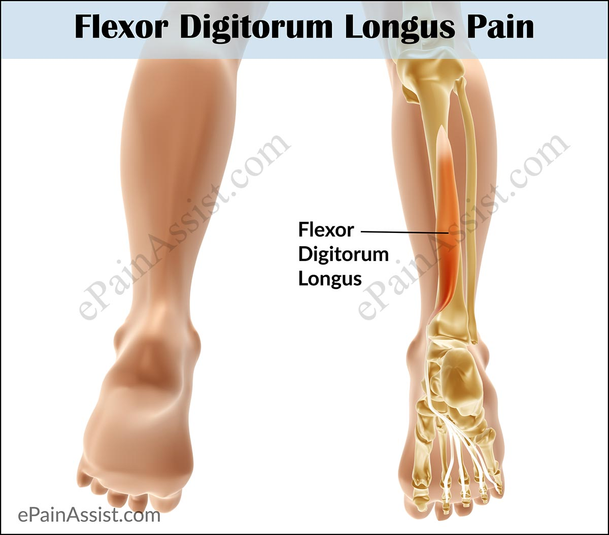 Flexor Digitorum Longus Pain|Symptoms|Causes|Treatment