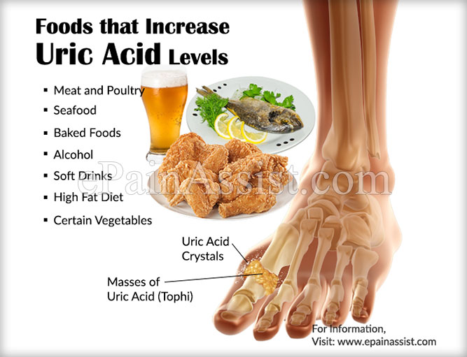 medicine for uric acid pain medical treatment for acute gout high uric acid urine