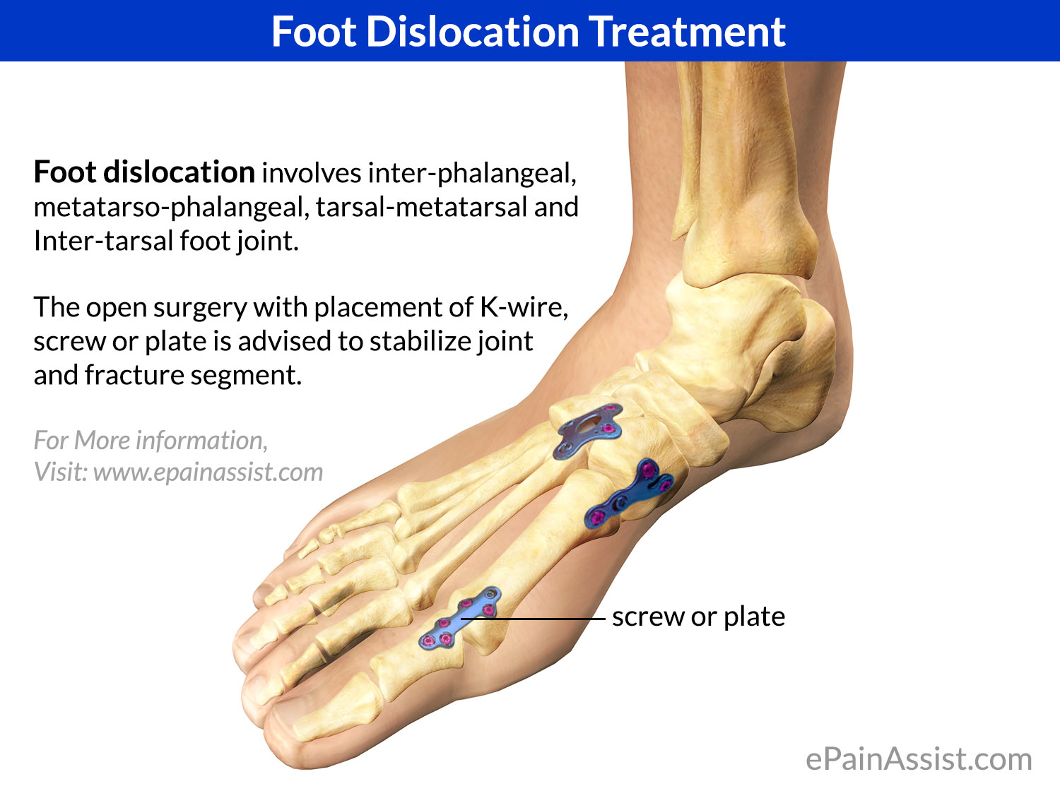 Foot Dislocation Treatment: Elective, Surgical, Post Surgical, ER