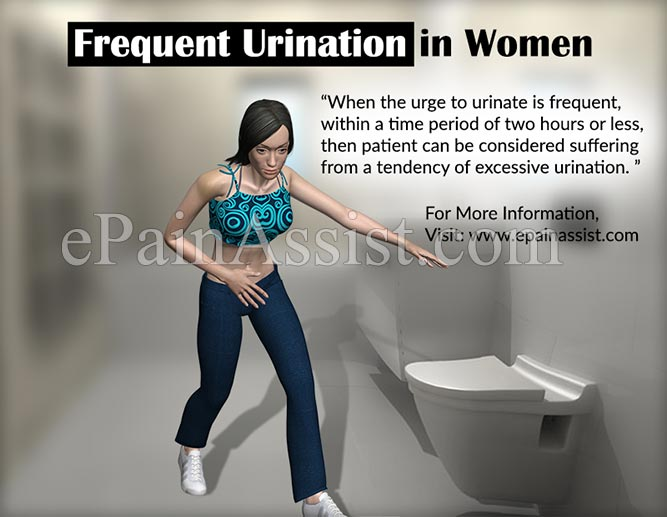 Frequent Urination in Women