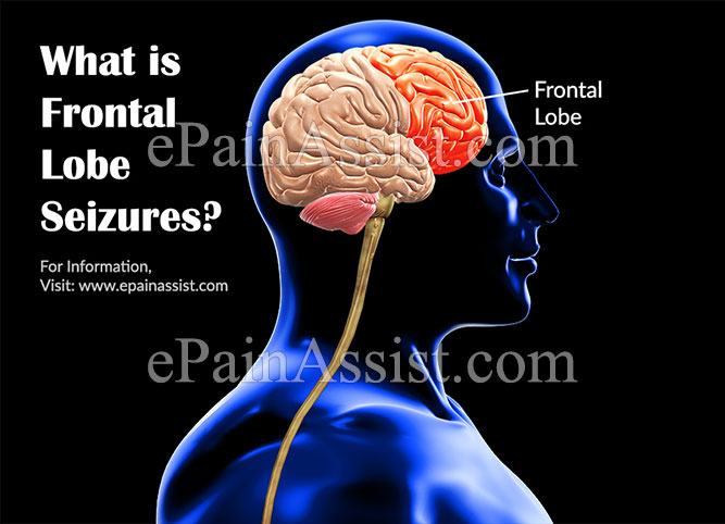 Frontal Lobe Seizures or Epilepsy