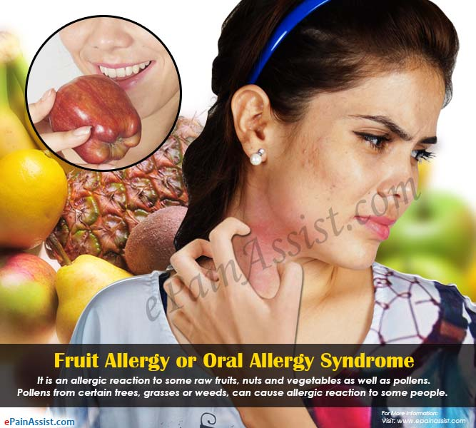 Fruit Allergy or Oral Allergy Syndrome