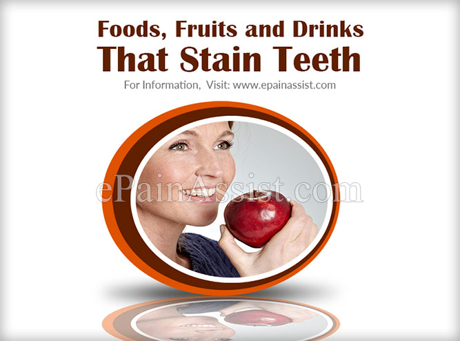 Foods, Fruits and Drinks That Stain Teeth