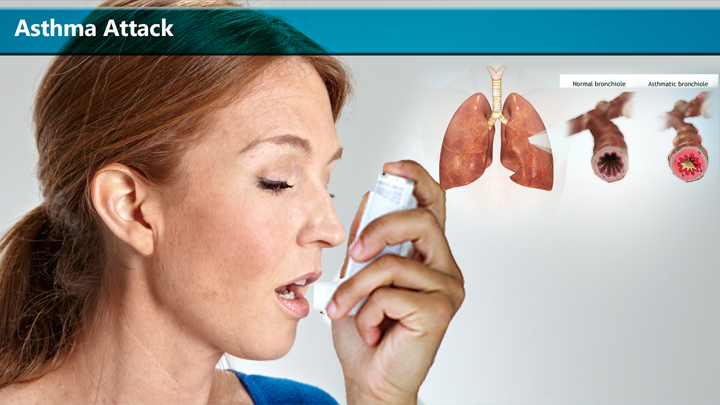 Early Warning, Symptoms of Asthma Attack