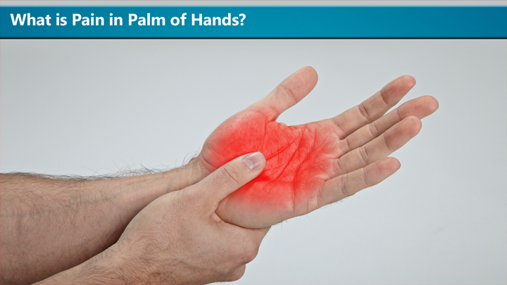 What Is Pain In Palm Of Hands
