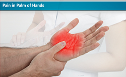 Pain in Palm of Hands